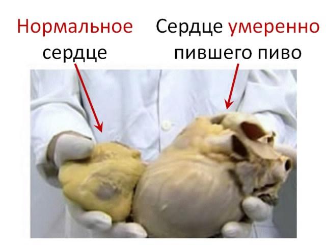 sohranyaet-li-sperma-svoyu-zhiznesposobnost-v-vode